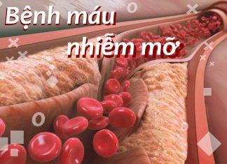 Bệnh máu nhiễm mỡ