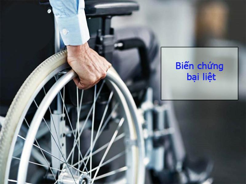 Hình ảnh: Biến chứng bại liệt do đau thần kinh tọa