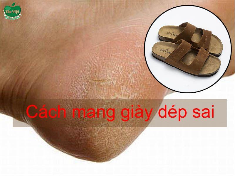 Cách mang giày dép bị sai