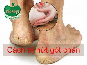 Cách trị nứt gót chân