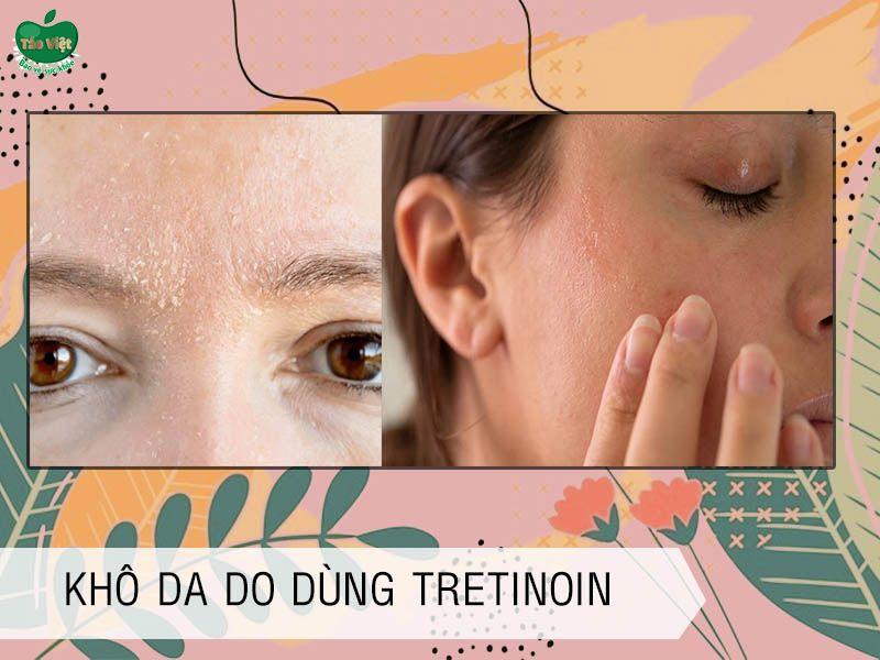 Dùng Isotretinoin có thể gây khô da