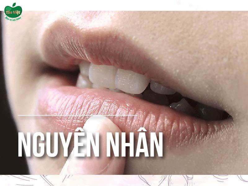 Nguyên nhân nào gây thâm môi?