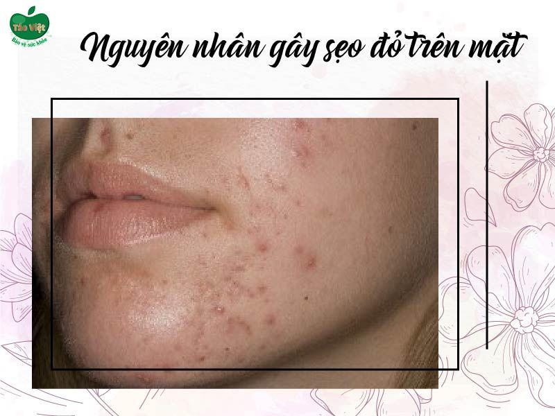 Nguyên nhân gây ra sẹo đỏ trên mặt