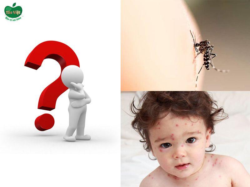 tại sao muỗi đốt gây thâm