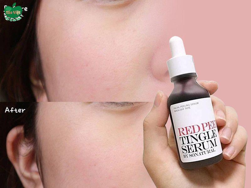 Tình trạng da đã được cải thiện sau khi sử dụng Red Peel Tingle Serum