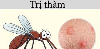 trị thâm do muỗi đốt nhanh nhất