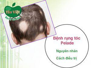 Bệnh rụng tóc Pelade