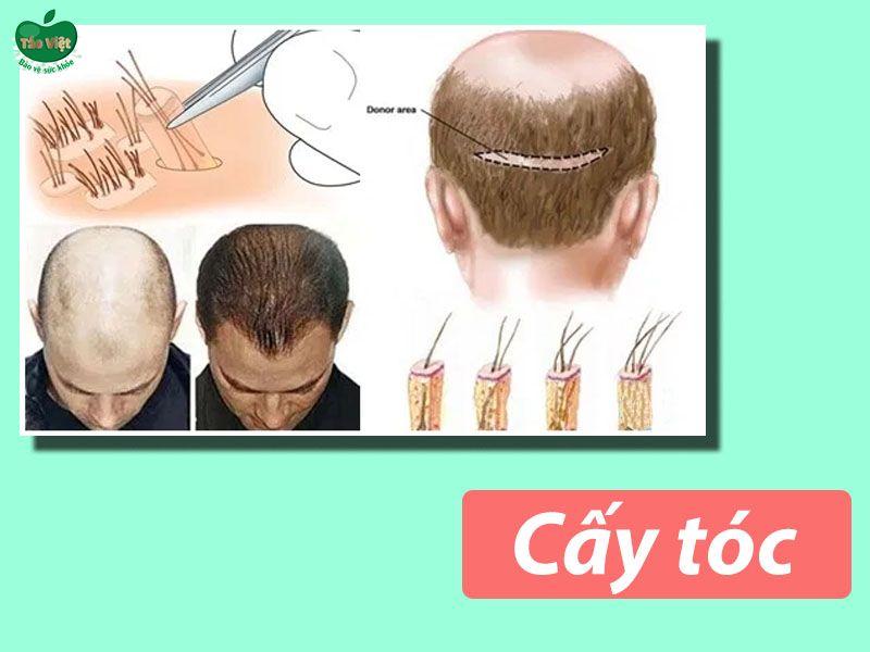 Thực hiện phẫu thuật cấy tóc chữa hói đầu