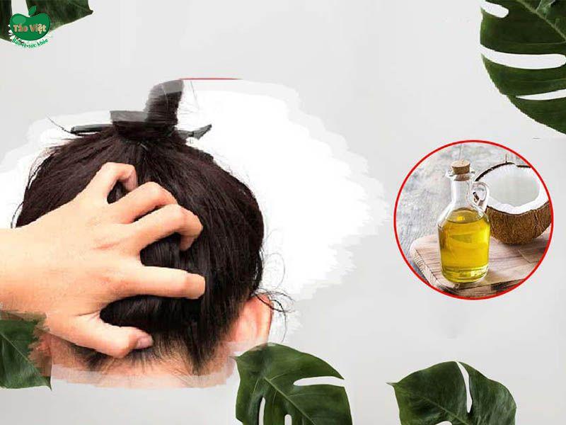 Công thức trị ngứa da đầu bằng dầu dừa
