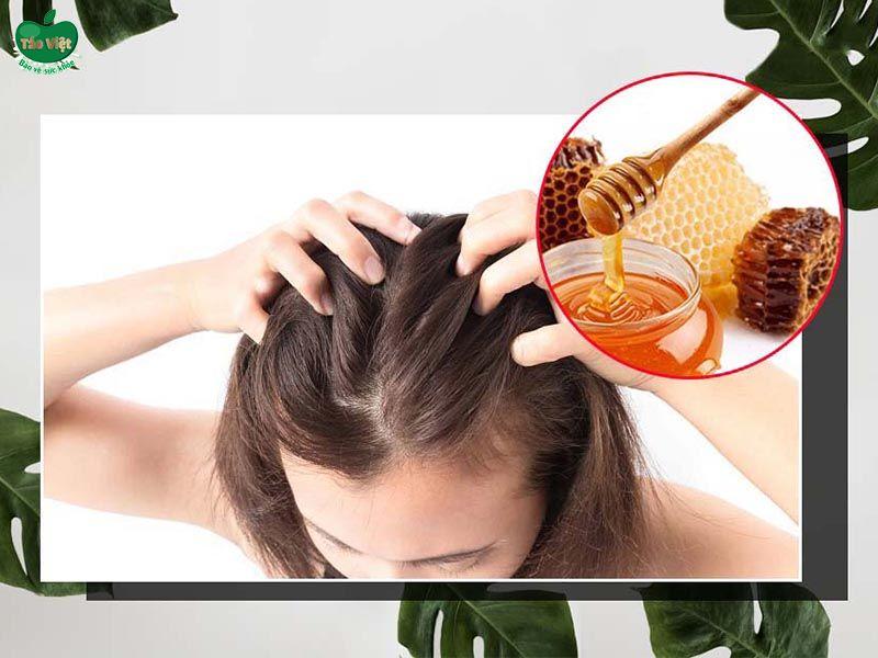 Dùng mật ong trị dứt điểm ngứa da đầu