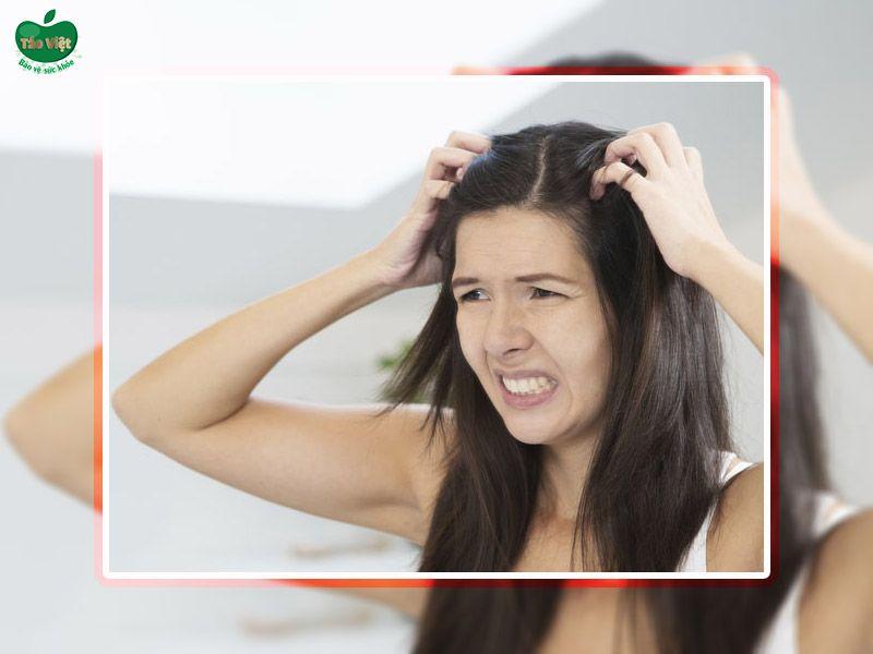 Cảm giác ngứa ngáy tăng lên khi bị nấm da đầu