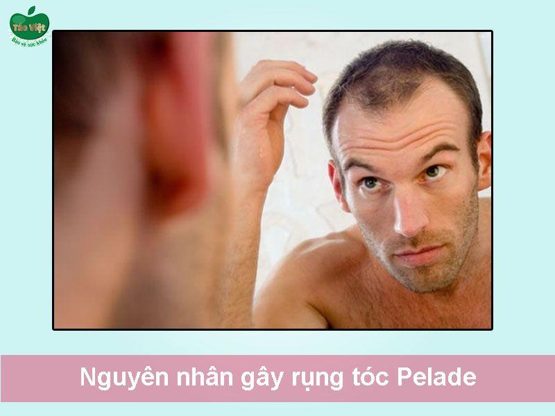 Nguyên nhân gây rụng tóc Pelade
